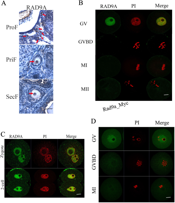 rad9a is involved in chromatin decondensation and post