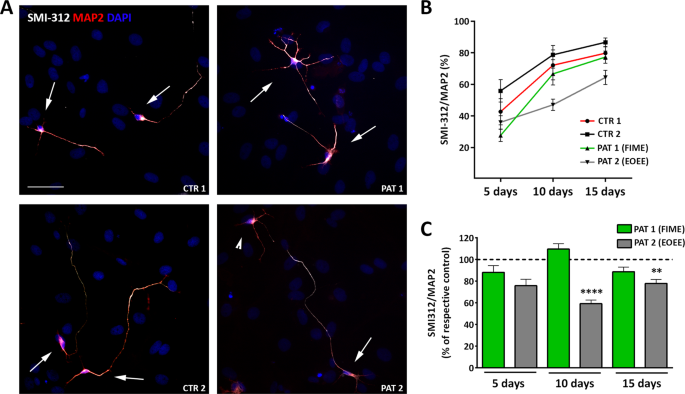 71b38d24 TBC1D24 regulates axonal outgrowth and membrane trafficking at the ...