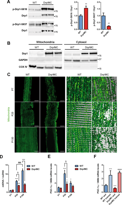 Drp1 overexpression induces desmin disassembling and drives kinesin-1 activation promoting mitochondrial trafficking in skeletal muscle