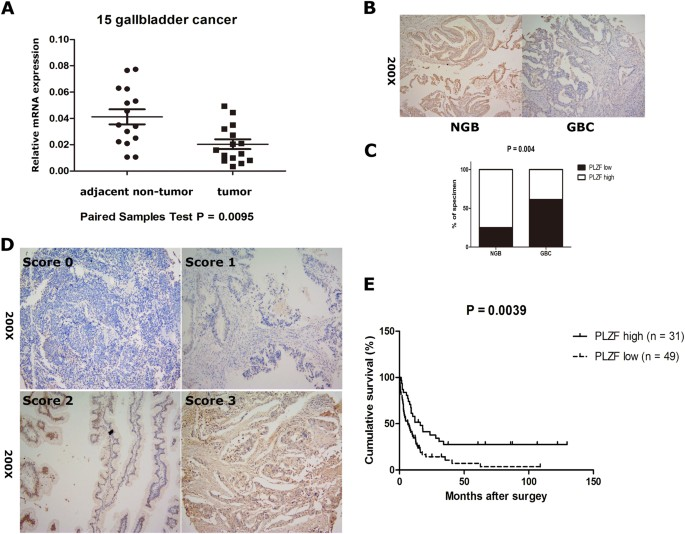 Plzf Inhibits Proliferation And Metastasis Of Gallbladder Cancer By