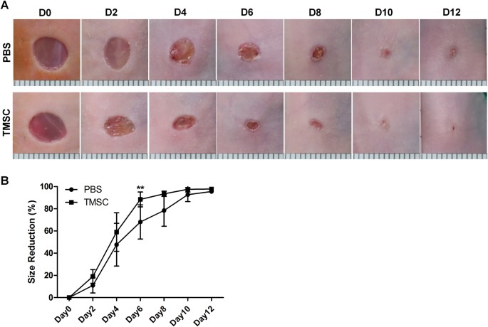 Regenerative potential of tonsil mesenchymal stem cells on