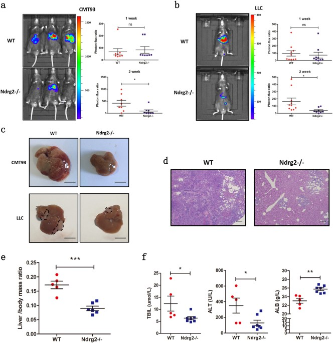 Loss Of Ndrg2 In Liver Microenvironment Inhibits Cancer