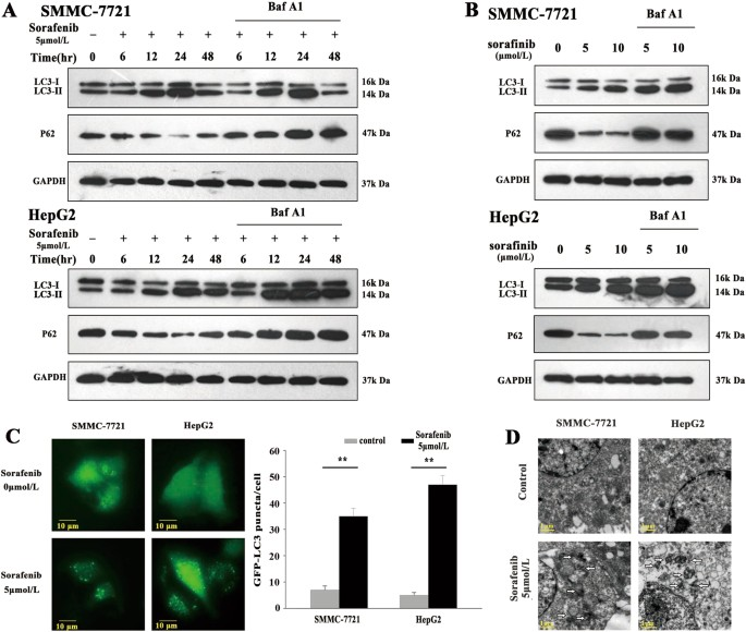 PU 1/microRNA-142-3p targets ATG5/ATG16L1 to inactivate