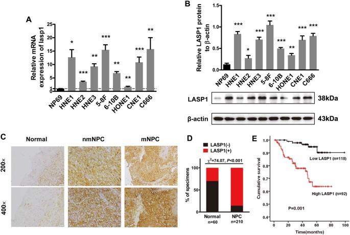 LASP1 promotes nasopharyngeal carcinoma progression through