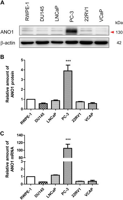 Inhibition Of Ano1tmem16a Induces Apoptosis In Human