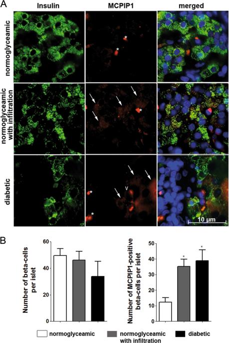 MCPIP1 regulates the sensitivity of pancreatic beta-cells to cytokine toxicity