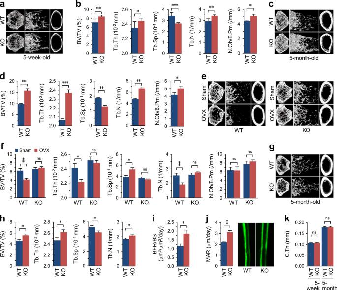CYTL1 regulates bone homeostasis in mice by modulating