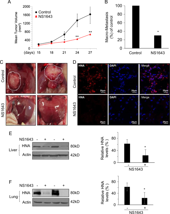 Potassium Channel Activity Controls Breast Cancer Metastasis By Affecting B Catenin Signaling Cell Death Disease