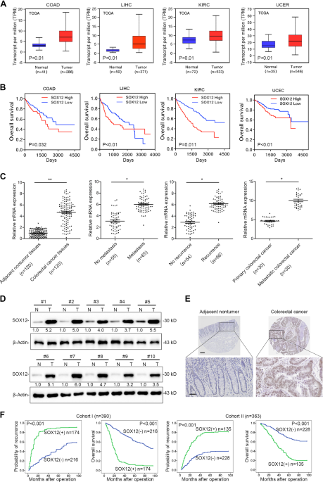 Sox12 Promotes Colorectal Cancer Cell Proliferation And Metastasis By Regulating Asparagine Synthesis Cell Death Disease