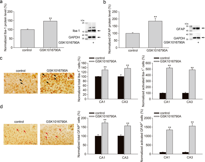 TRPV4-induced inflammatory response is involved in neuronal