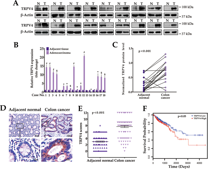 Activation Of Pten By Inhibition Of Trpv4 Suppresses Colon Cancer Development Cell Death Disease