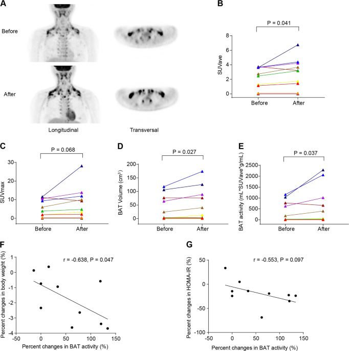 Berberine promotes the recruitment and activation of brown adipose tissue in mice and humans