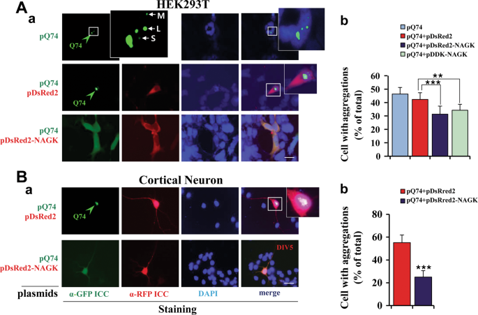 N-acetyl-D-glucosamine kinase binds dynein light chain roadblock 1 and promotes protein aggregate clearance