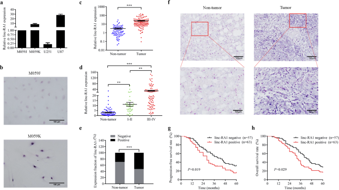 Linc-RA1 inhibits autophagy and promotes radioresistance by preventing H2Bub1/USP44 combination in glioma cells