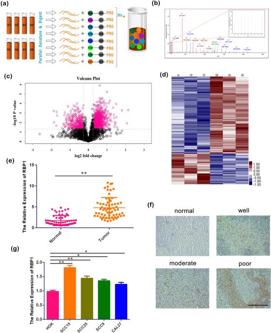 The RBP1–CKAP4 Axis Activates Oncogenic Autophagy And