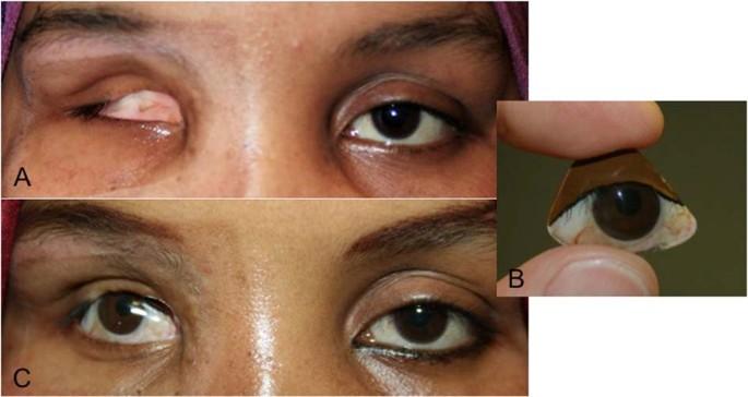 Bespoke ocular prostheses