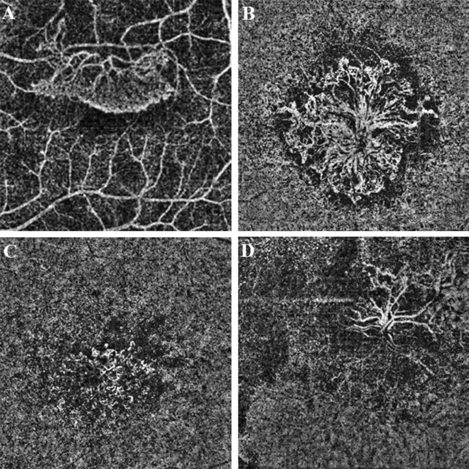 Membrane patterns in eyes with choroidal neovascularization on optical coherence tomography angiography