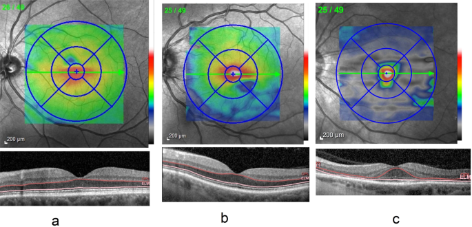 An objective method of diagnosing hydroxychloroquine maculopathy