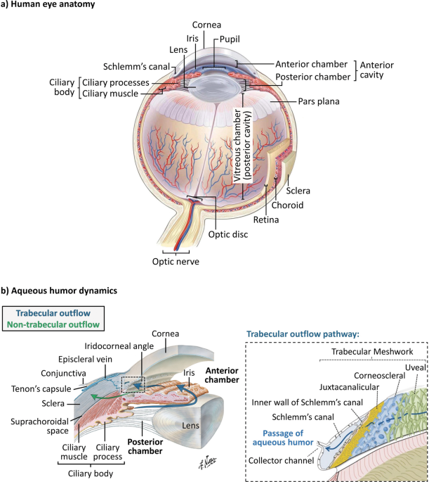 Conventional glaucoma implants and the new MIGS devices: a comprehensive review of current options and future directions