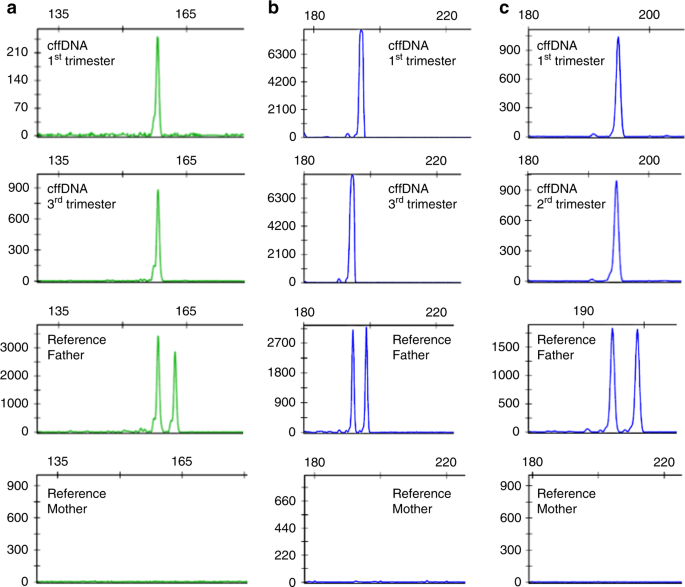 Unique Maternal Blood Dna Markers >> Analysis Of Fetal Dna In Maternal Plasma With Markers Designed For