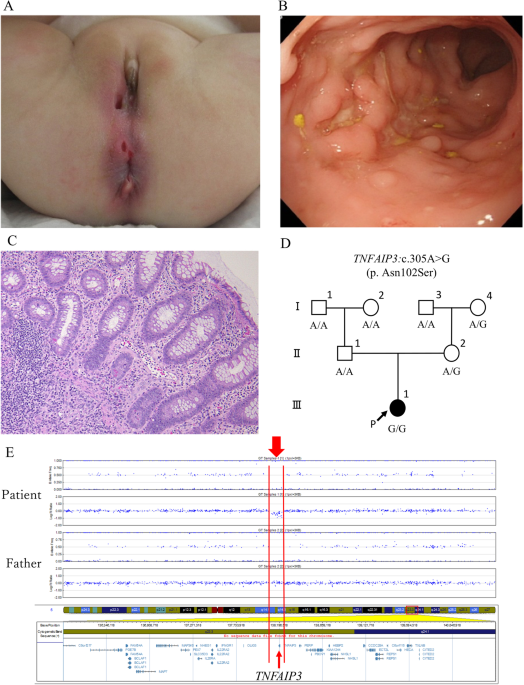 Novel TNFAIP3 microdeletion in a girl with infantile-onset inflammatory bowel disease complicated by a severe perianal lesion