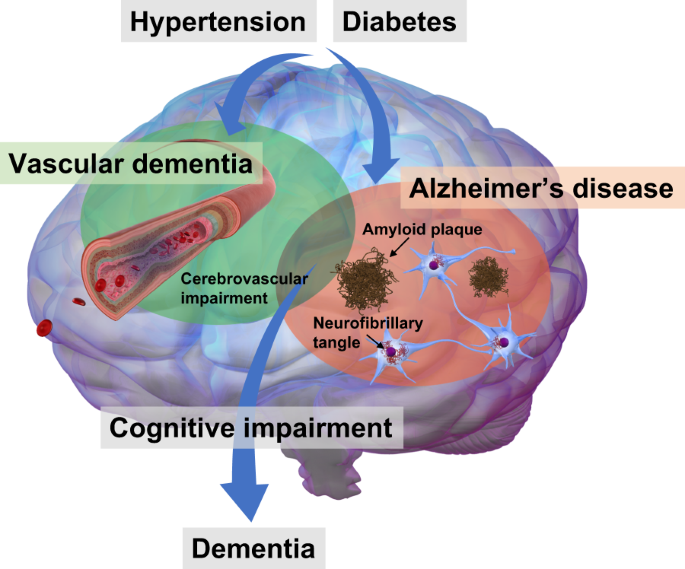 Roles of vascular risk factors in the pathogenesis of dementia |  Hypertension ResearchNature
