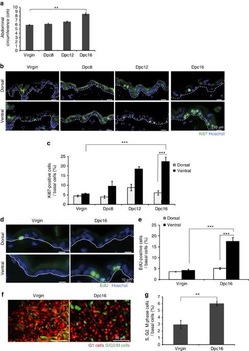 Tbx3-dependent amplifying stem cell progeny drives interfollicular ...