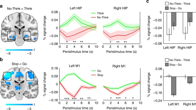 Hippocampal GABA enables inhibitory control over unwanted thoughts ...