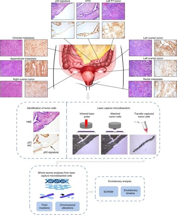 High Grade Serous Ovarian Carcinomas Originate In The Fallopian Tube Nature Communications