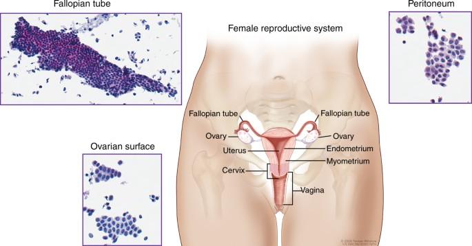 Molecular Analysis Of High Grade Serous Ovarian Carcinoma With And