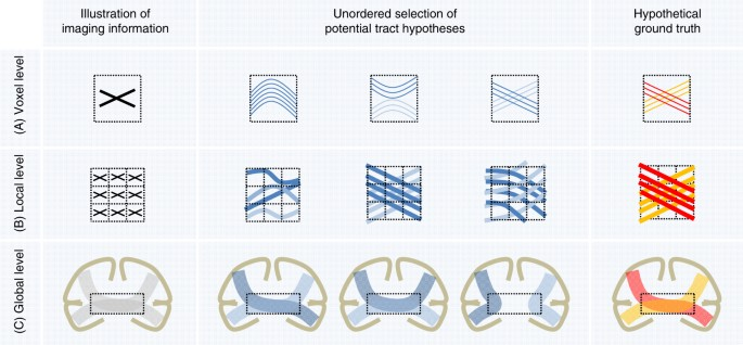 The Challenge Of Mapping Human Connectome Based On Diffusion Electrical Symbols Circuit For Kids Dk Find Out Ambiguous Correspondences Between Directions And Fiber Geometry Three Illustrations At Voxel Local Global Level Are Used As An Example