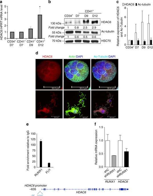 Critical role of the HDAC6–cortactin axis in human