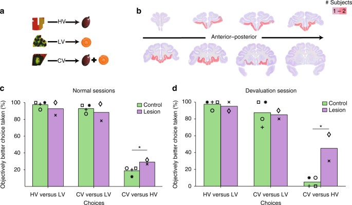 Inverted activity patterns in ventromedial prefrontal cortex