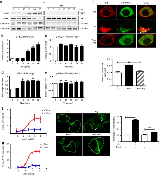 Homocysteine Directly Interacts And Activates The Angiotensin Ii
