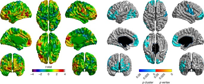 92a8e340bff Cortical thinning in PD. Changes in cortical thickness in PD patients  compared to healthy controls over the 1-year study period. Left panel   t-statistic ...