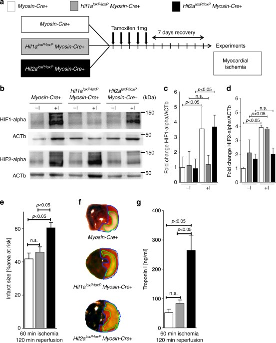 Studies Implicate Early Injury To >> Hypoxia Inducible Factor 2 Alpha Dependent Induction Of Amphiregulin