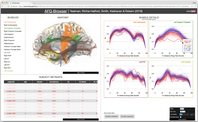 A Browser Based Tool For Visualization And Analysis Of Diffusion Mri