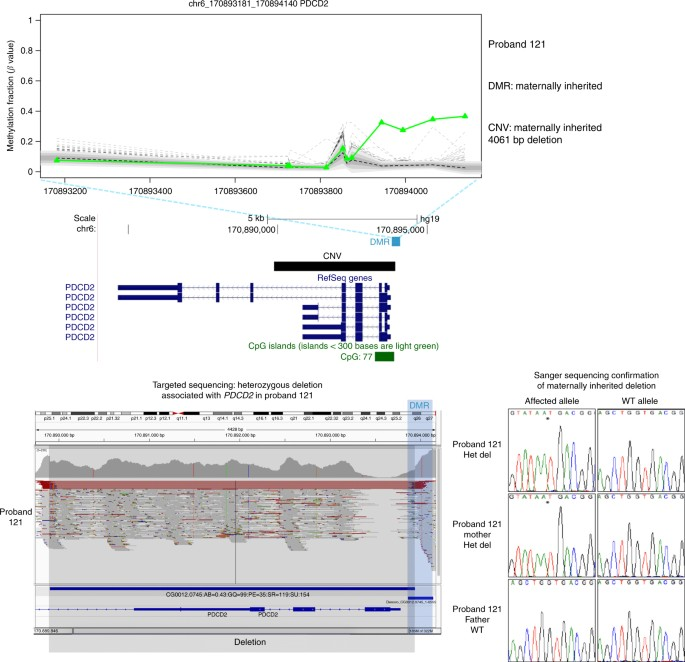 Identification Of Rare De Novo Epigenetic Variations In Congenital