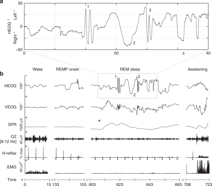 Smooth tracking of visual targets distinguishes lucid REM sleep ...
