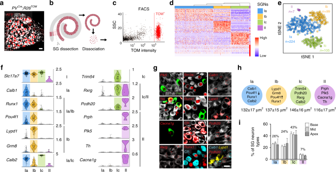 Research Identifies Complex Of Neurons >> Neuronal Heterogeneity And Stereotyped Connectivity In The Auditory