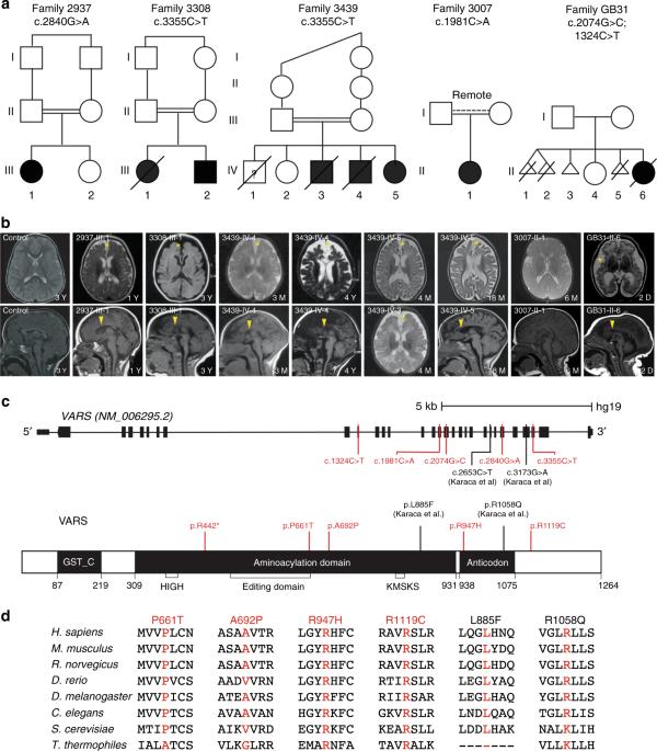 Biallelic mutations in valyl-tRNA synthetase gene VARS are