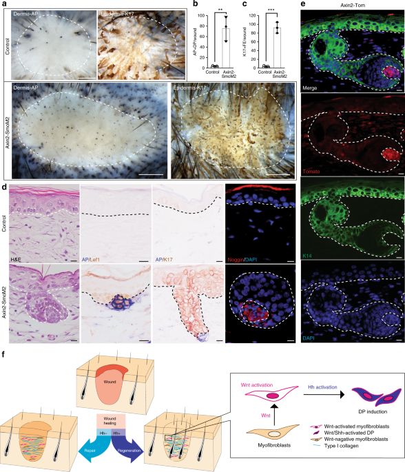 Hh activation can convert fibrotic Wnt-active dermal cells into DP in  wounds. a–d Axin2-CreER; R26-SmoM2 (Axin2-SmoM2) and littermate controls  were ...