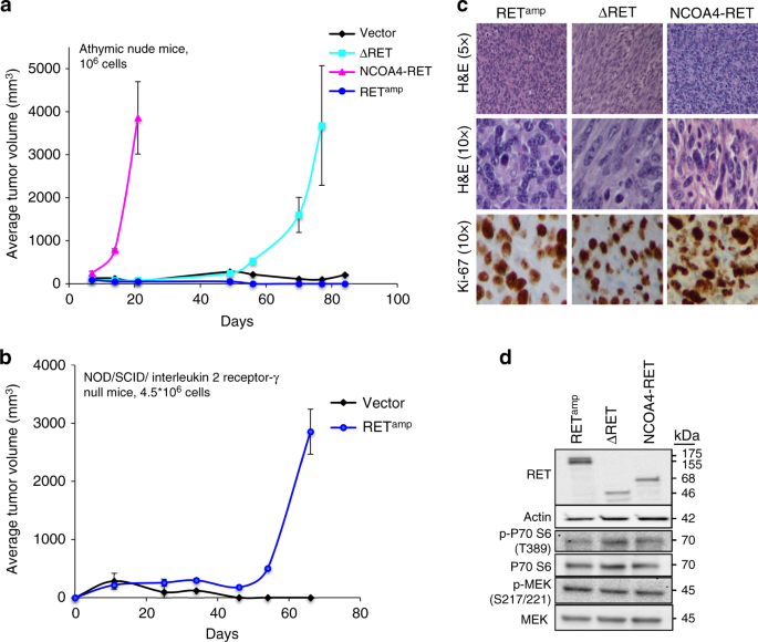 Ret Rearrangements Are Actionable Alterations In Breast Cancer  Nature Communications-4557