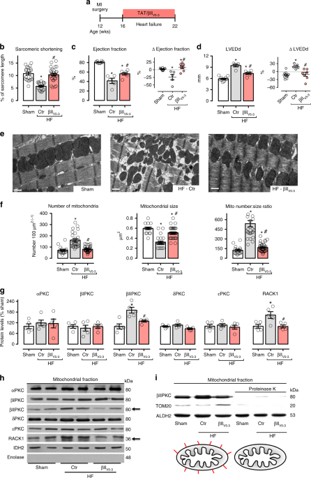 QnA VBage A selective inhibitor of mitofusin 1-βIIPKC association improves heart failure outcome in rats