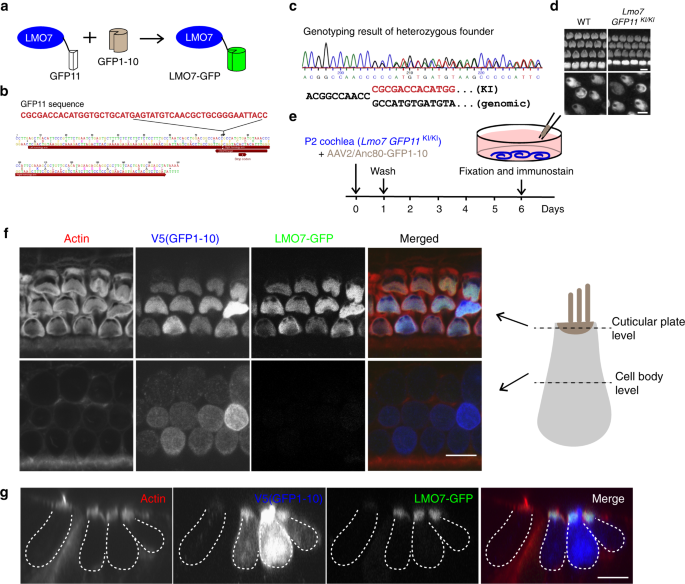 LMO7 deficiency reveals the significance of the cuticular plate for hearing function