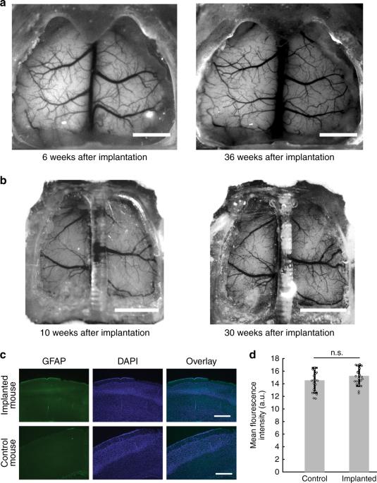 Cortex-wide neural interfacing via transparent polymer skulls