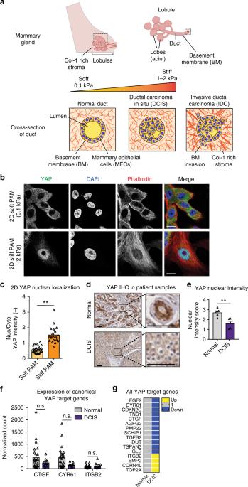 nature.com - YAP-independent mechanotransduction drives breast cancer progression