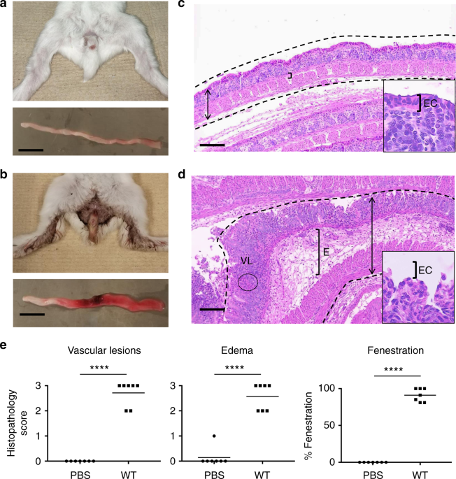Critical role of bacterial dissemination in an infant rabbit
