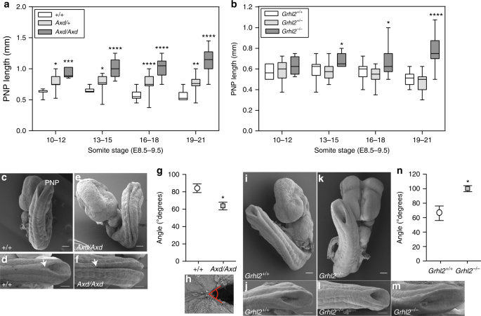 Spinal neural tube closure depends on regulation of surface
