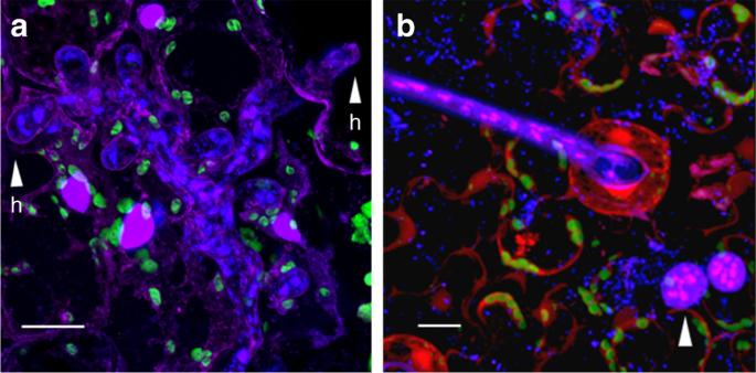 Genomic signatures of heterokaryosis in the oomycete pathogen Bremia lactucae